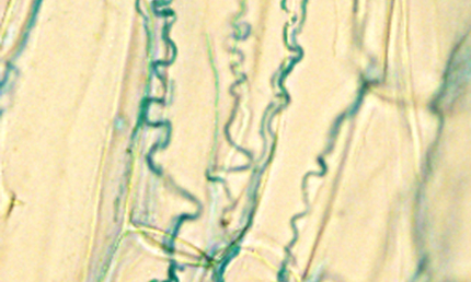 Microscope image shows blue endophyte lines in tall fescue tissue